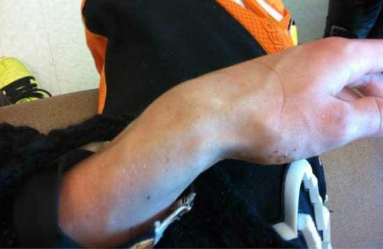 фото сломанная рука