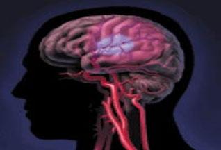 Что делать если у меня сотрясения мозга 68